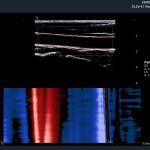 Pulse-Wave-Velocity
