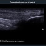 tendon-Ahile-sindromul-Haglund